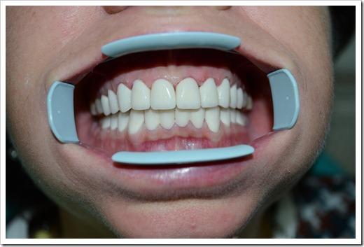 Бытовые способы отбеливания зубов